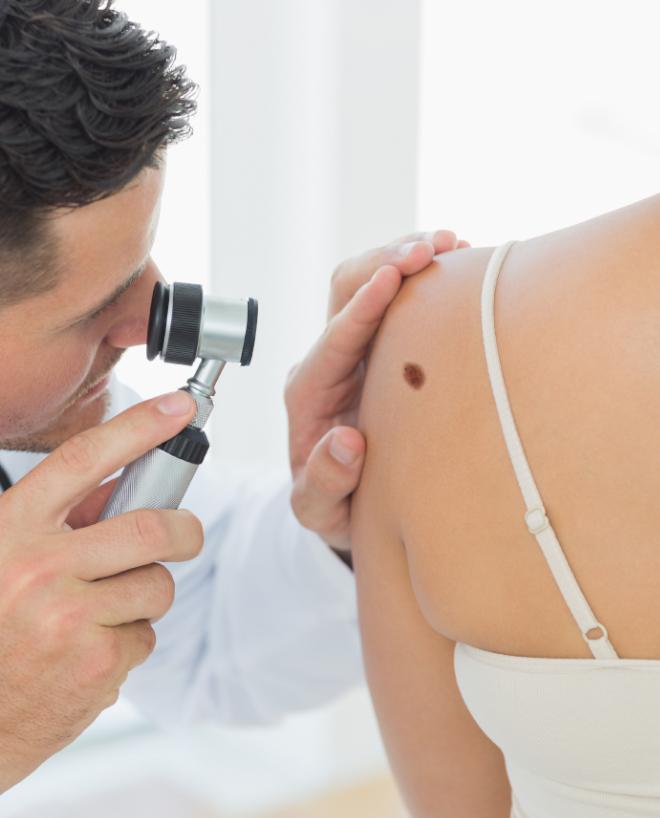 esame-dermatoscopico
