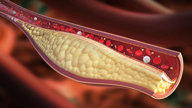 Colesterolo e ipercolesterolemia: facciamo chiarezza