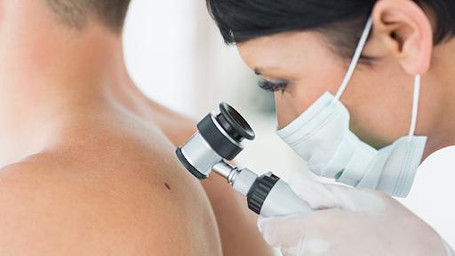 Esame dermatoscopico e prevenzione